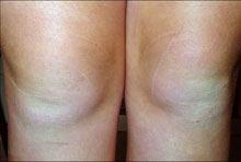 Legs Before Using E3 Light Polish™ and E3 Light Crème™