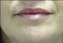Mouth After Using E3 Light Polish™ and E3 Light Crème™