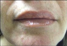 Mouth Before Using E3 Light Polish™ and E3 Light Crème™