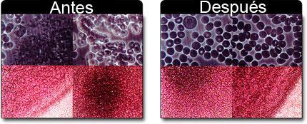 Sangre: Antes y Después